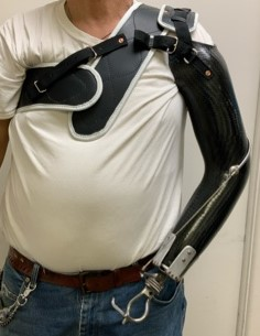 Body Powered Upper Limb Prosthesis